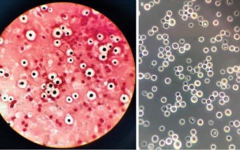 UMN研究人员确定了影响对隐球菌感染的反应的基因差异