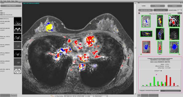 首个获 FDA 批准的 AI 乳腺癌诊断系统诞生:能降低 39% 漏诊率