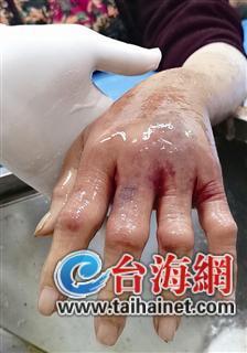 漳州一老太洗了下水池感染创伤弧菌 险些要截肢