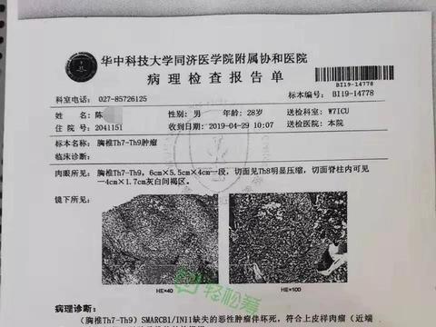 县委宣传部官员为子众筹,回应:不要因为公职而优待