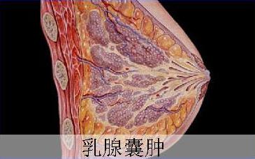 查出乳腺囊肿会自愈么?济南乳腺病医院专家解答