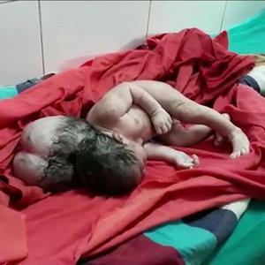 """罕见!印度产妇生下畸形""""三头女婴"""""""