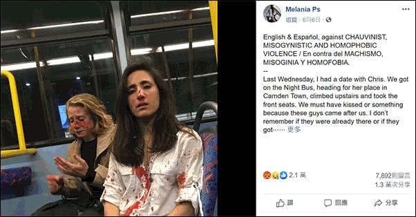 梅拉尼娅(图右)和克里斯(图左)面部均不同程度受伤。