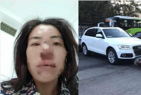 母亲给重病女儿送饭路上被撞翻,求司机:不讹钱,求你给孩子送饭