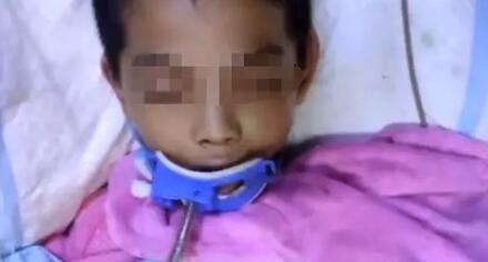 家中少装一样东西11岁儿子被雷劈中 住进ICU(图)|儿子