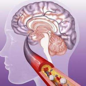 预防脑梗,改变饮食很重要!专家建议:多吃3种食物预防脑梗塞