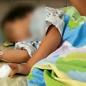 酒店院内养猴子 两岁女童正围观突然手被拽进笼子遭咬伤