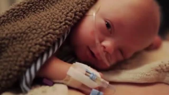 感动世界的早产儿宝宝