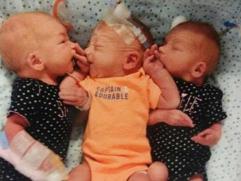 美国糊涂女子以为患肾结石,医生检查怀孕34周、生下三胞胎