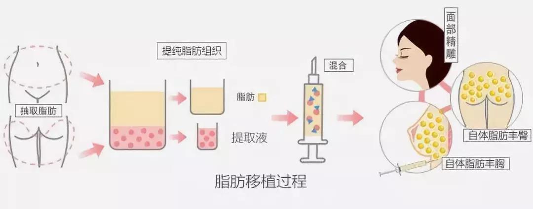 自体脂肪和玻尿酸填充,哪个适合你?| 科普篇