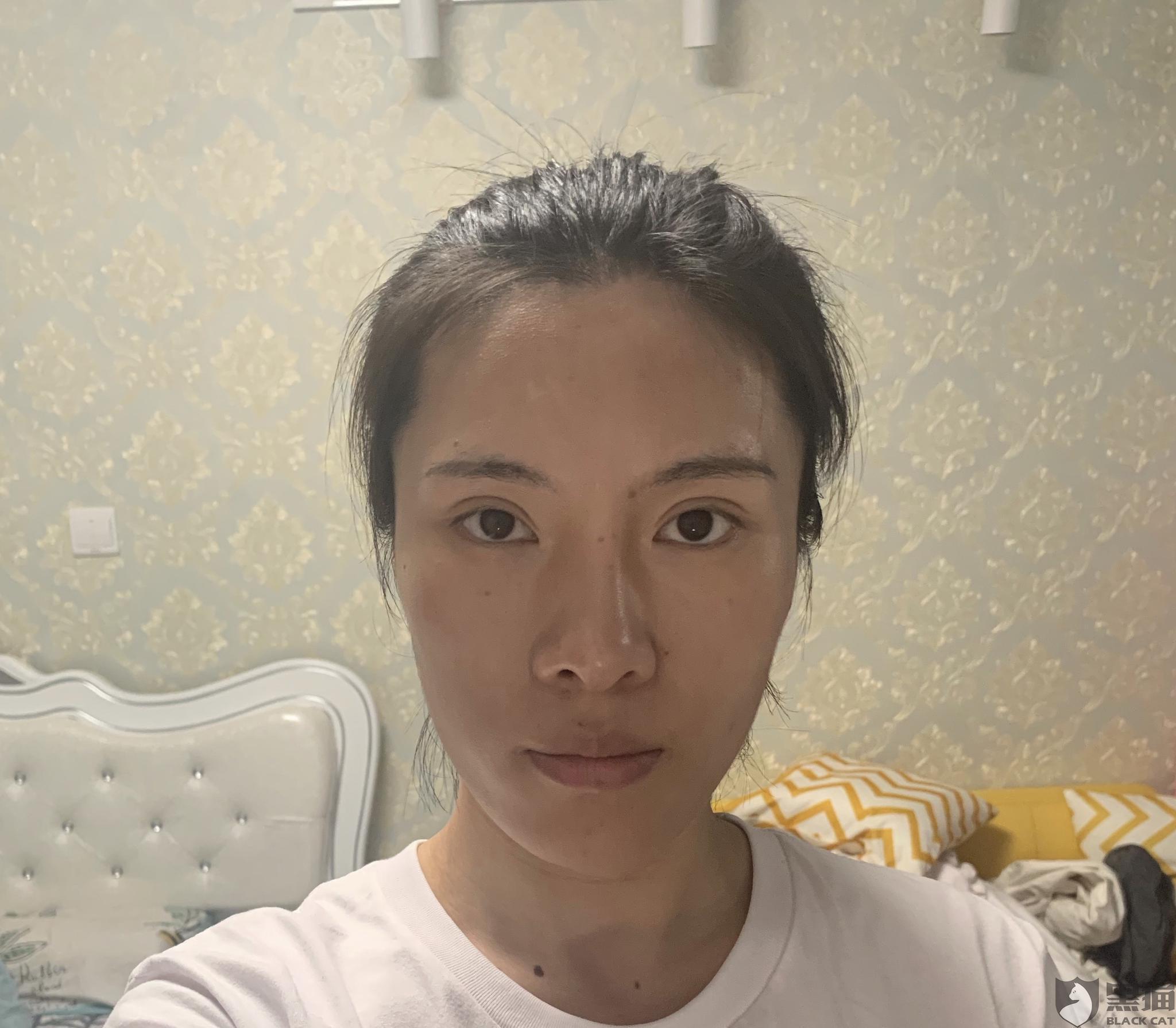 黑猫投诉:在苏州常春藤医疗美容医院做整形,后续鼻子歪了要求修复,但是医院一直拖延