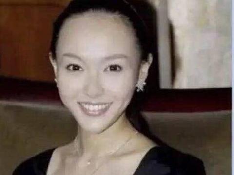 脱发严重的美女明星,刘亦菲第八,张嘉倪第二,杨幂排第几?