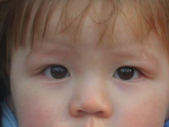 如果宝宝身体有这4种表现,说明孩子可能缺锌了,要及时帮娃补锌