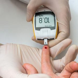 最新研究!线粒体的变化驱动2型糖尿病的炎症,而不是葡萄糖