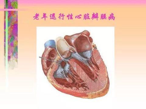 老年性退行性心脏瓣膜病不想手术,能保守治疗吗