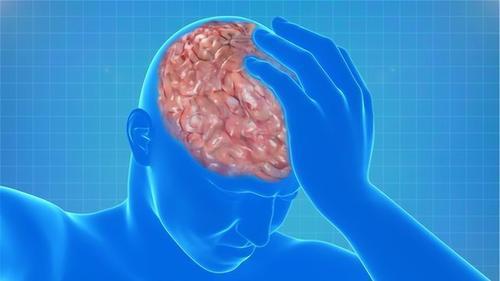 脑梗来了,身体有3个变化,1个都别错过,这是大脑的求救信号!