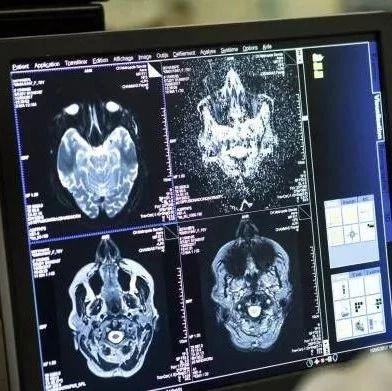 FT专栏:马斯克的脑机接口技术很危险,Neuralink将大脑控制权让给AI无异于自杀