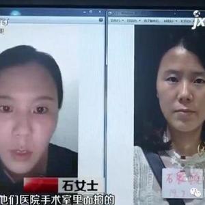 女子在萍乡丽芙医疗美容诊所注射玻尿酸 脸变形了
