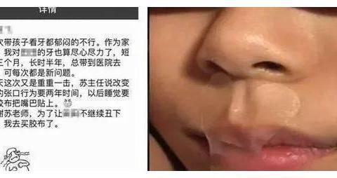 4张图,告诉你张嘴睡觉的孩子面貌会如何变化,中了的要注意