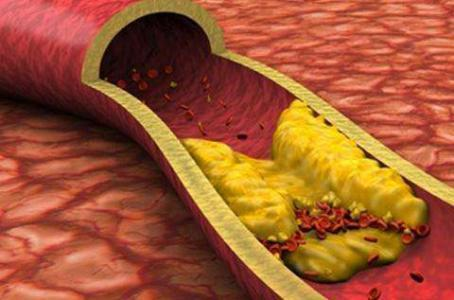高血脂、孕妇和痛风患者,能吃螃蟹吗?吃螃蟹禁忌,一次性说清楚