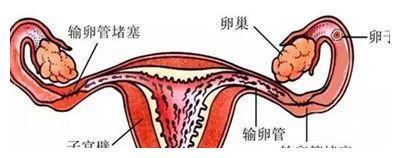 输卵管堵塞该怎么办