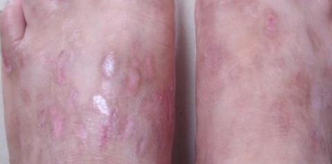湿疹的治疗有哪些需要注意的事项呢?