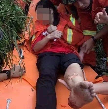 险!广州驴友爬山被雷劈伤,腹部脚部严重烧伤