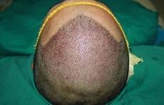 植发者平均34岁,90后占36%!植发或成下一个千亿行业