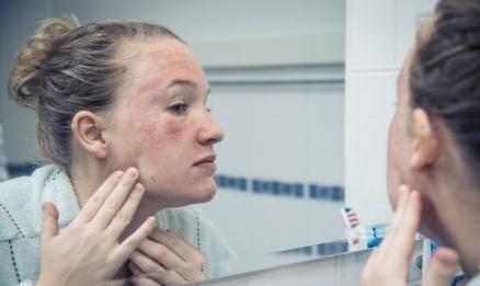 敏感肌的妹子们速看,这些护肤方式一定要知道