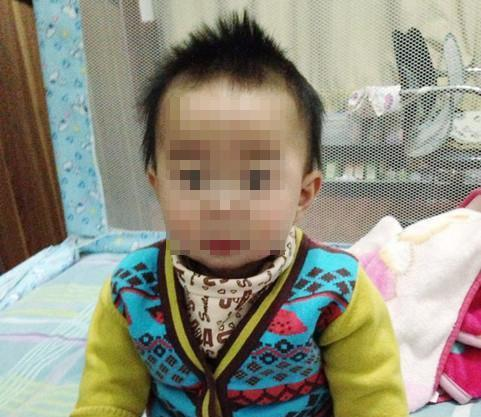 9个月宝宝囟门闭合,妈妈挺开心,医生检查后妈妈吓哭了