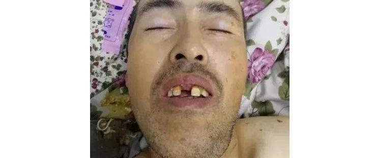 急!中年男子哈尔滨一旅店突发脑出血送医治疗,帮忙寻找家属!