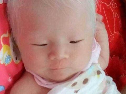 孩子刚出生就满头白发,原来这一切都是隔代遗传