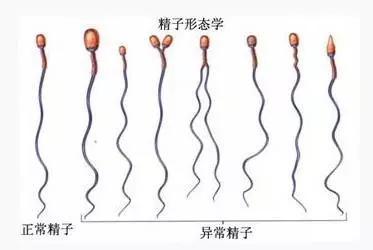 99%精子畸形率,影响做试管婴儿吗?