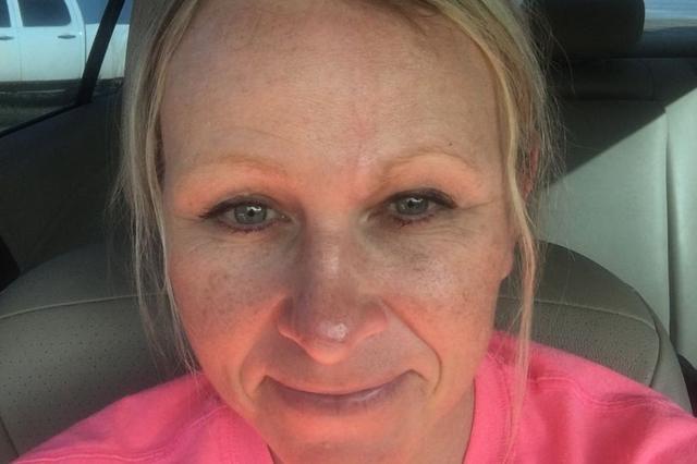 美国女子美黑多年患皮肤癌 一周照6次紫外线灯