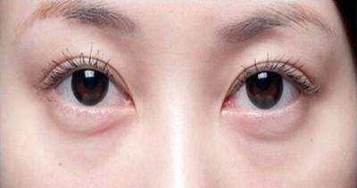 怎样祛眼袋?小护士教你护肤秘籍,十五天眼袋消失看不见