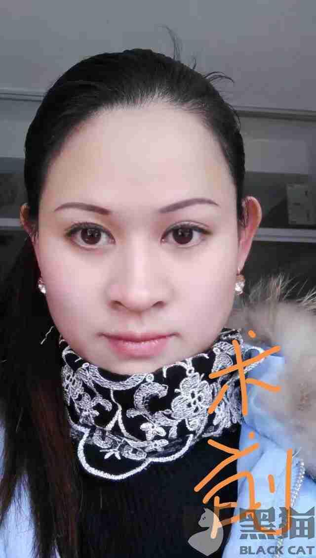 黑猫投诉:我是去年9月在上海浦东新区连波路141号丽质医院做了隆鼻手术,第一次假体歪了第二
