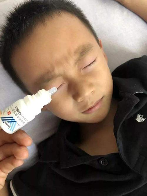 502胶水被孩子当成滴眼液,妈妈明智的急救措施,保住了孩子眼睛