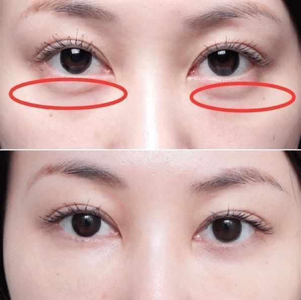 眼袋肿胀特别显老,几毛钱的小物,帮你平滑眼袋,眼部紧致更年轻