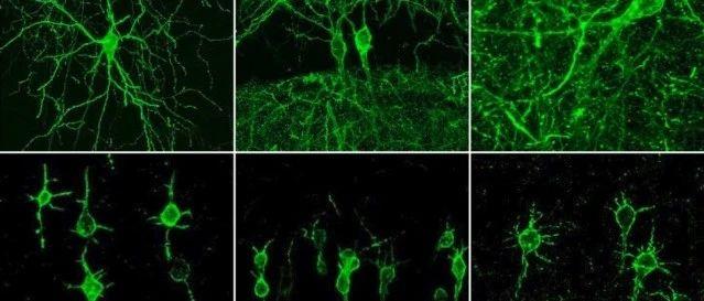 """MIT新技术:一根探针成像多个神经元,让神经元放电""""看得见"""""""
