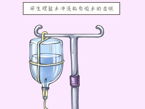 宝宝误把502胶水当滴眼液,宝妈紧急处理,连医生都竖大拇指