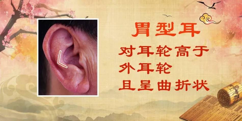 湿热、消化不良、胃粘膜萎缩,这些疾病从耳朵形状就能看出来!