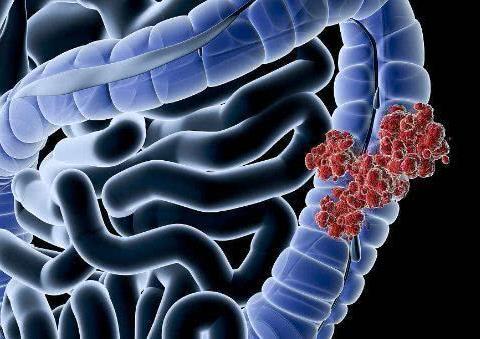 肠道癌变,排便不会骗你!排便时出现这3个异常,或是肠癌来了