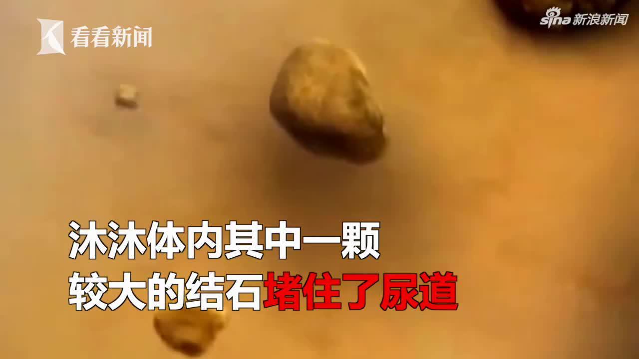 视频-2岁男童患上肾结石 因家长频繁为其补钙