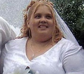 430斤胖女子手术减肥260斤,身上留下的赘肉如同泄气的气球