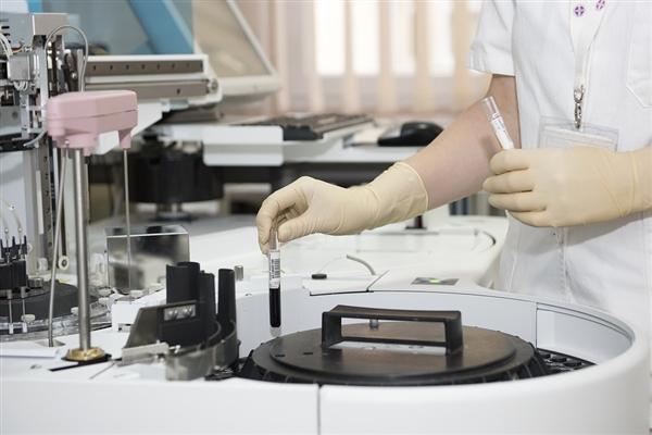 研究人员研发出卵巢癌早期检测试验方法:提前两年就能诊断