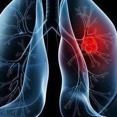 肺癌只是慢性病,这是真的吗?