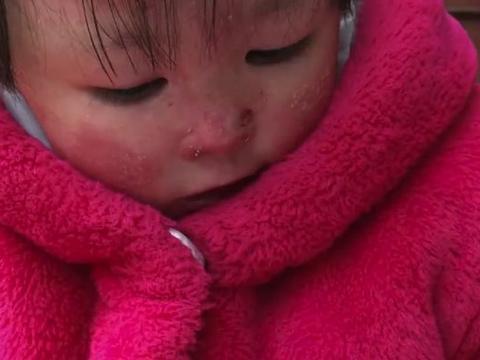 河南瓷娃娃皮肤十分脆弱,浑身没一块完整的皮,心疼