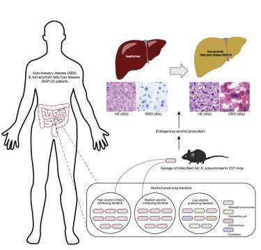 研究发现特殊肠道细菌会引发高水平酒精含量和肝脏疾病