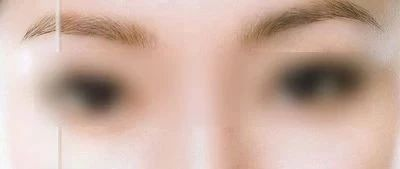 怎么办?柳州一女子割双眼皮后,眼部刺痛,经医院诊断为双眼角膜损伤!