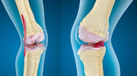膝盖痛到不能忍?5个诱因,大多和疾病有关